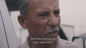 Miracle in Iraq, Christian Burned Three Times and Survives, Sees Jesus in Vision